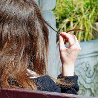 Treating scalp hair loss