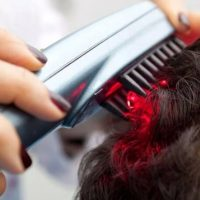 Low Level Laser Therapy (LLL) to treat hair loss