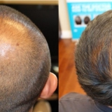 hair-transplant-crown