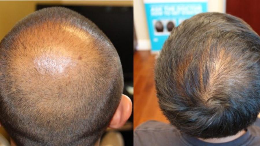 hair-transplant-crown