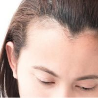 HAIR LOSS IN TEENAGERS AND HOW TO DEAL WITH THIS